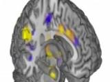 Can Science Change Bad Memories Into Good Memories?