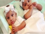 Conjoined Twins Separated During Complex 21-hour Procedure