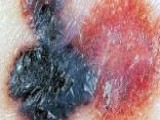 Melanoma Rate Rising For Men, Young Women