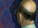 Nutrition The Key To Preventing, Reversing Baldness?