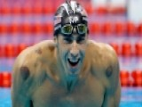 Olympic Bruises: How Effective Is Cupping?