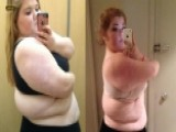 Obese High School Student Who Attempted Suicide Drops 157 Pounds