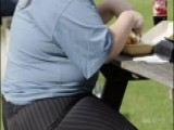Study: Obesity Could Make Prostate Cancer More Aggressive