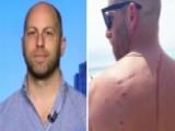 Shark Attack Saves Man's Life