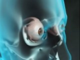 What Happens During Cataract Surgery?