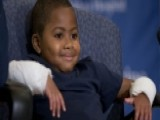 World's First Double-hand Transplant On A Child