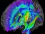 Brain Scans May Lead To Early Autism Detection